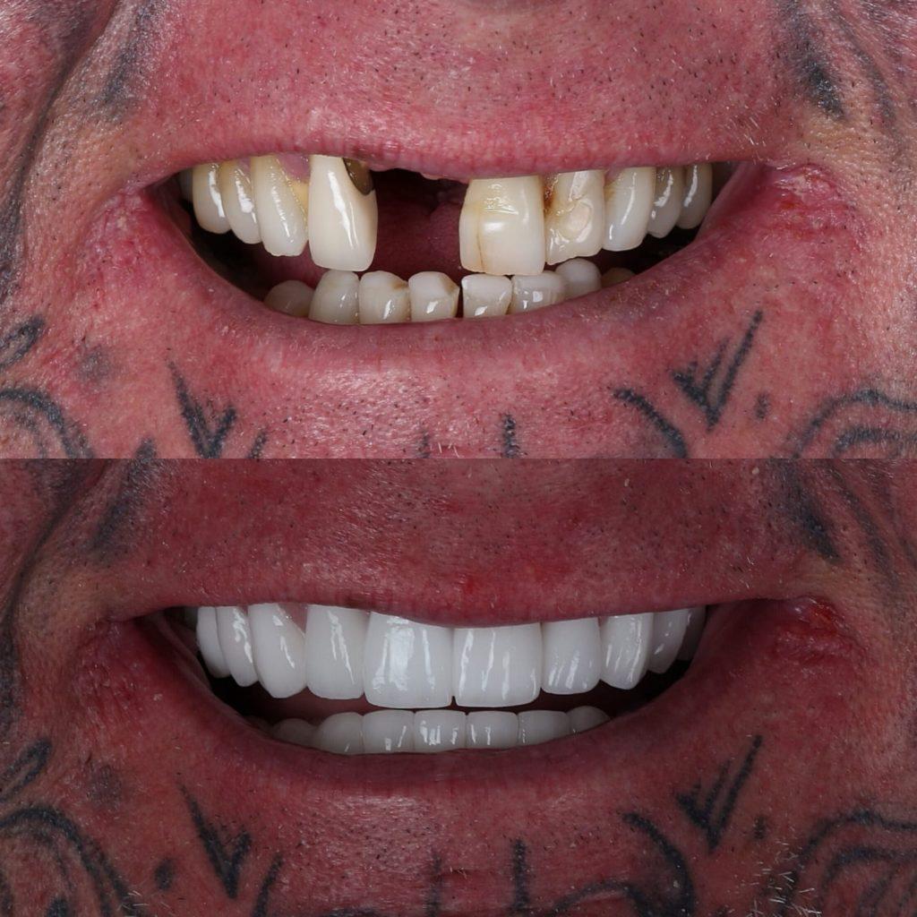 smile 10