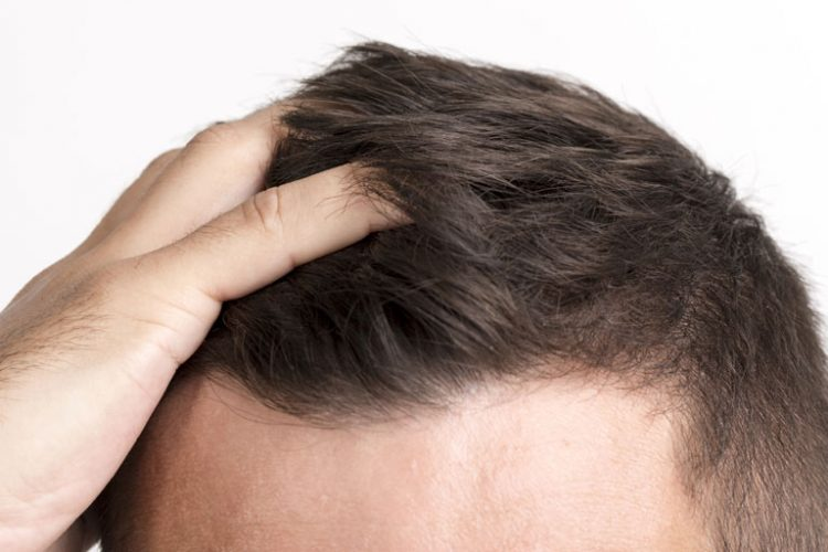 what causes hair thinning