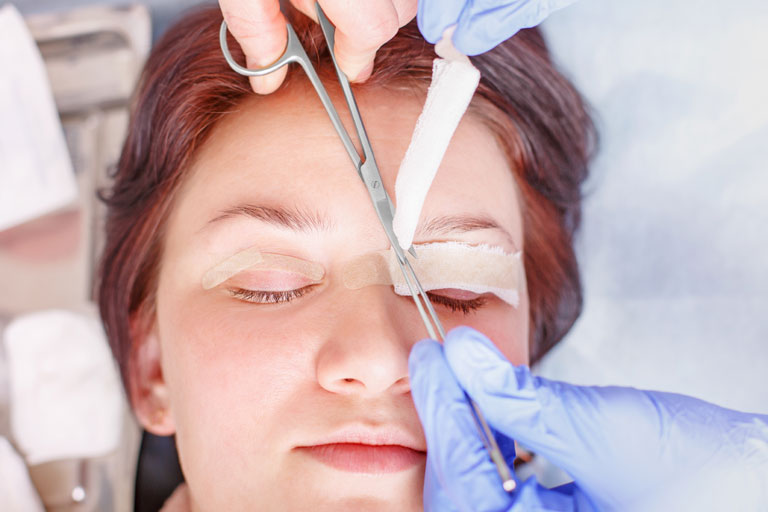 things to know about eyelid surgery